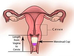 high-or-low-cervix05_small